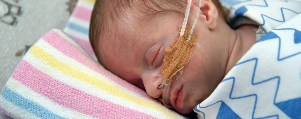 Baby with Oxygen Tubes